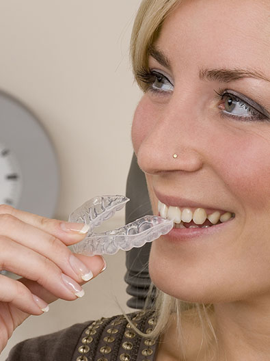 clear aligners invisalign
